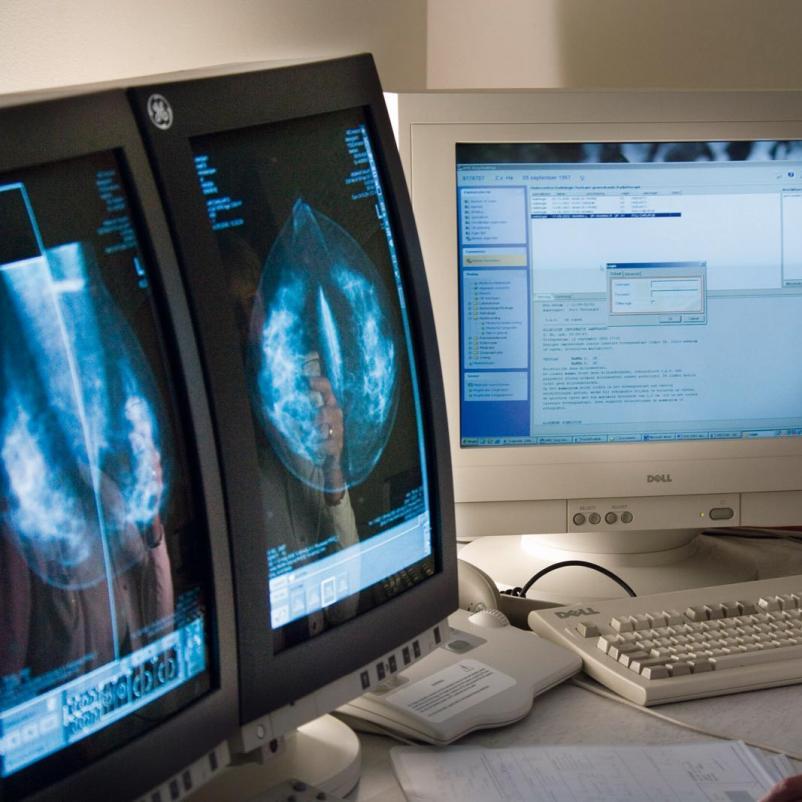 Arts bekijkt mammografie