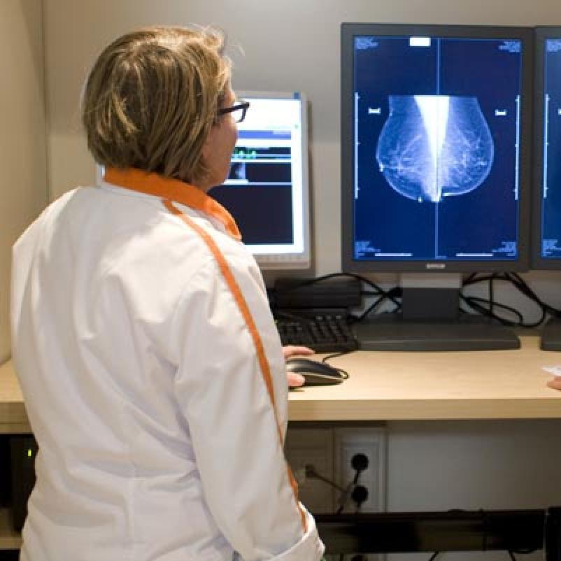 Mobiele screening borstkanker