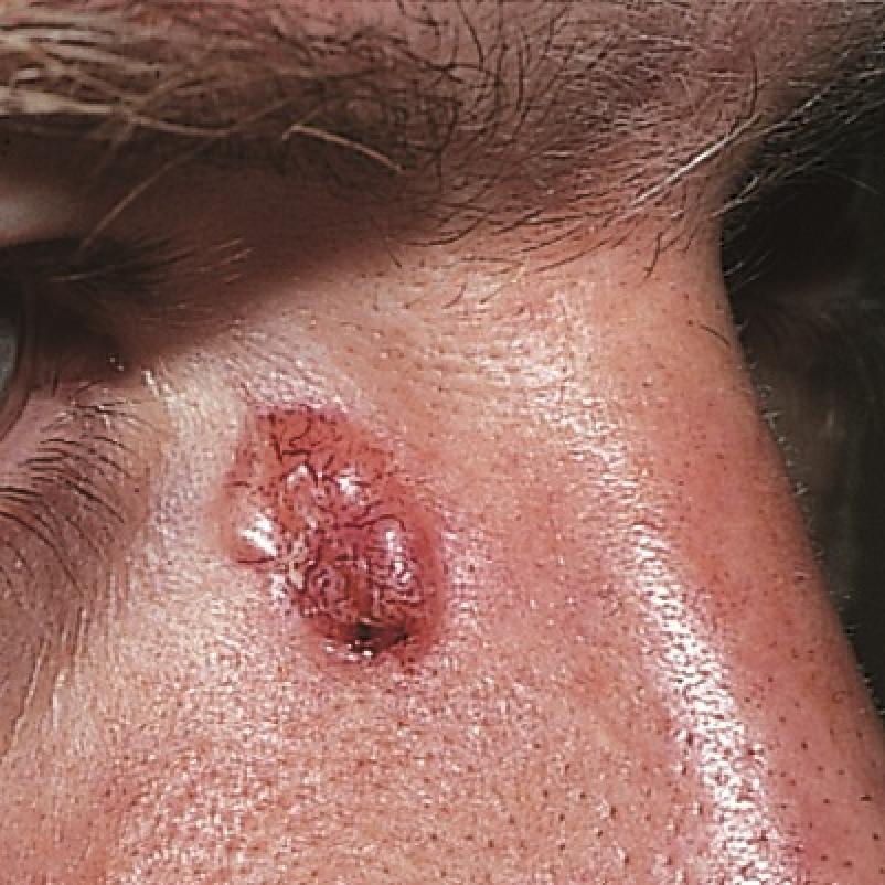 basaalcelcarcinoom neus